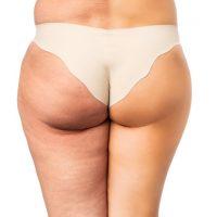 アミノ酸サプリの脂肪燃焼効果が話題|人気=良いとは限らない!口コミ評価ランキングTOP5