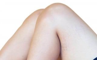 膝にできた赤い肉割れを消したい!今日からできる10のケア方法