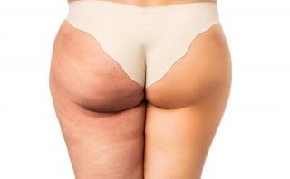 お尻歩きが下半身痩せに効果絶大!1日たった5分で引き締める方法